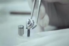 Besonderes Implantat