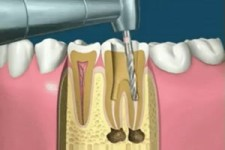 Interessantes Zahn-Video